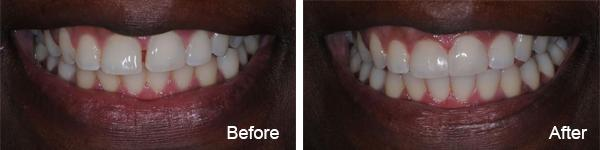 Invisalign1 - Smile Gallery