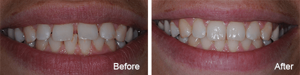 Philadelphia Invisalign Dentist