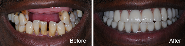 Smiles Philadelphia Bruce 1 - CEREC Same-day Restorations