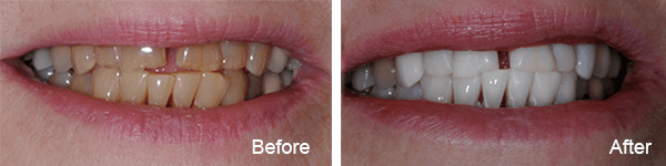 Philadelphia Teeth Bleaching Dentist