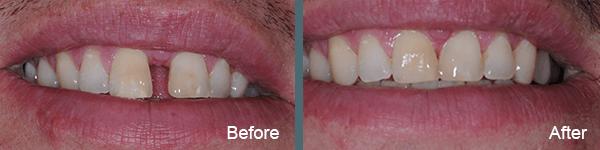 Willow Grove PA Invisalign dentist