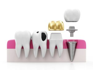 dental crown explanation
