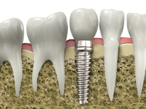 dental implant view