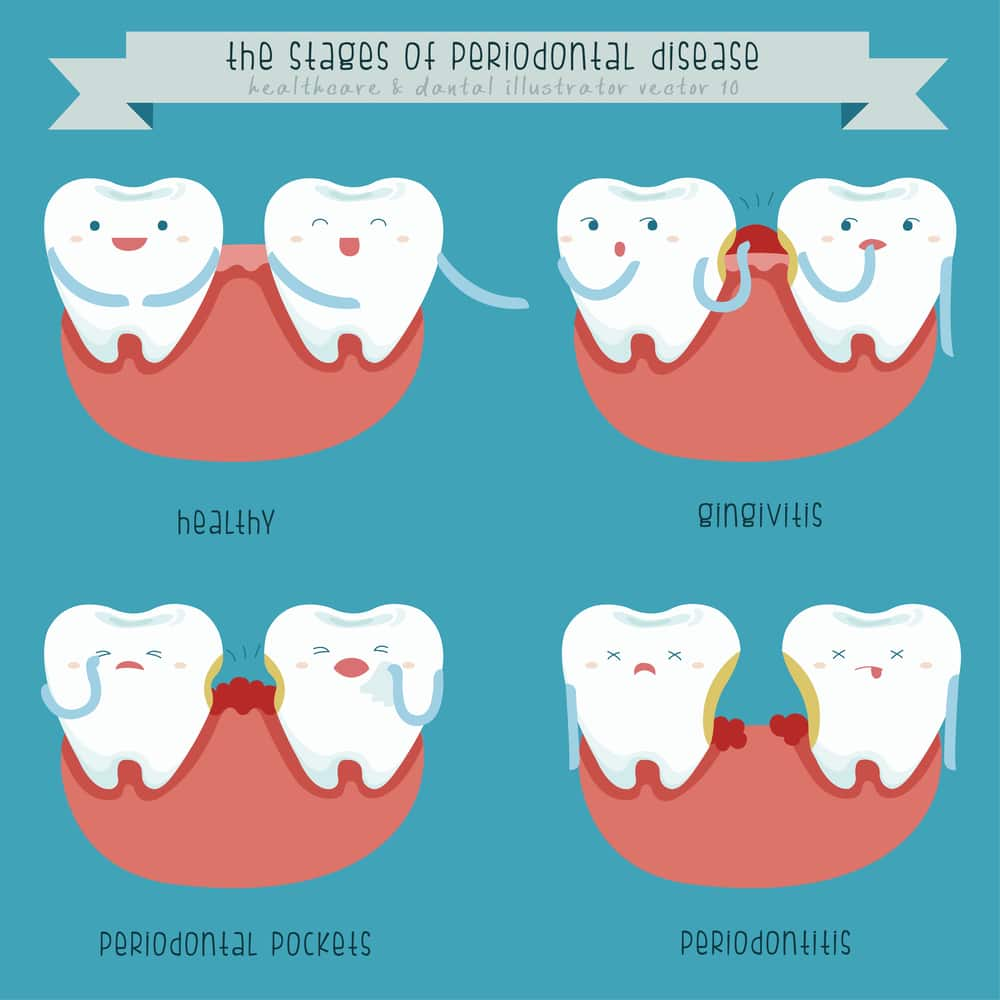 Depositphotos 50946333 m 2015 1 - Periodontics: How to Diagnose and Treat Periodontal Disease