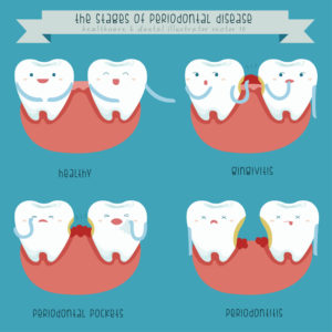 Periodontics is required to treat the different stages of periodontal disease.